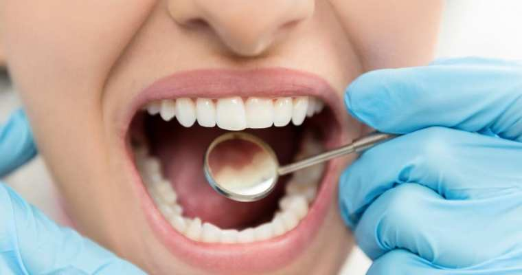 Are Soft Teeth Real? 5 Reasons You Are Prone to Cavities