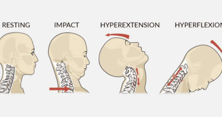 Understanding the whiplash injury and how to prevent and treat it?
