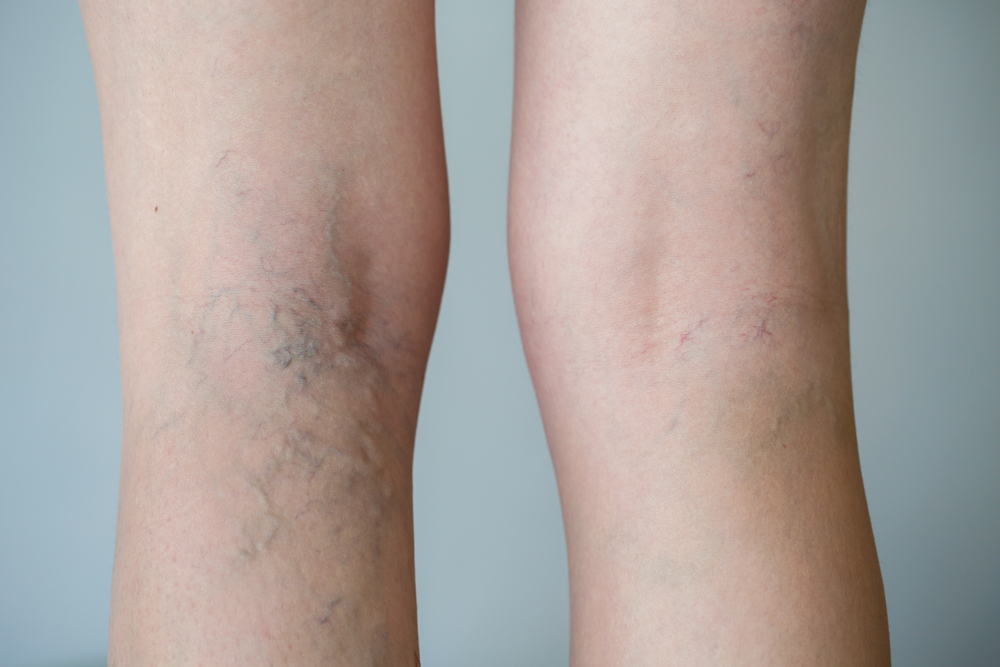 Person with varicose veins in legs