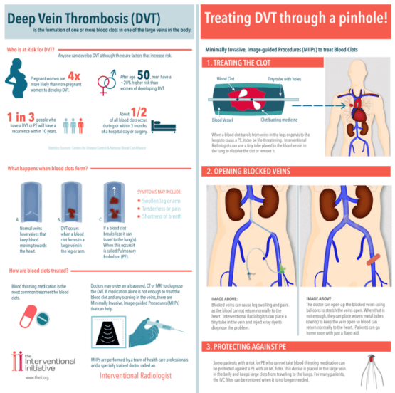 Deep Vein Thrombosis Specialist Denver