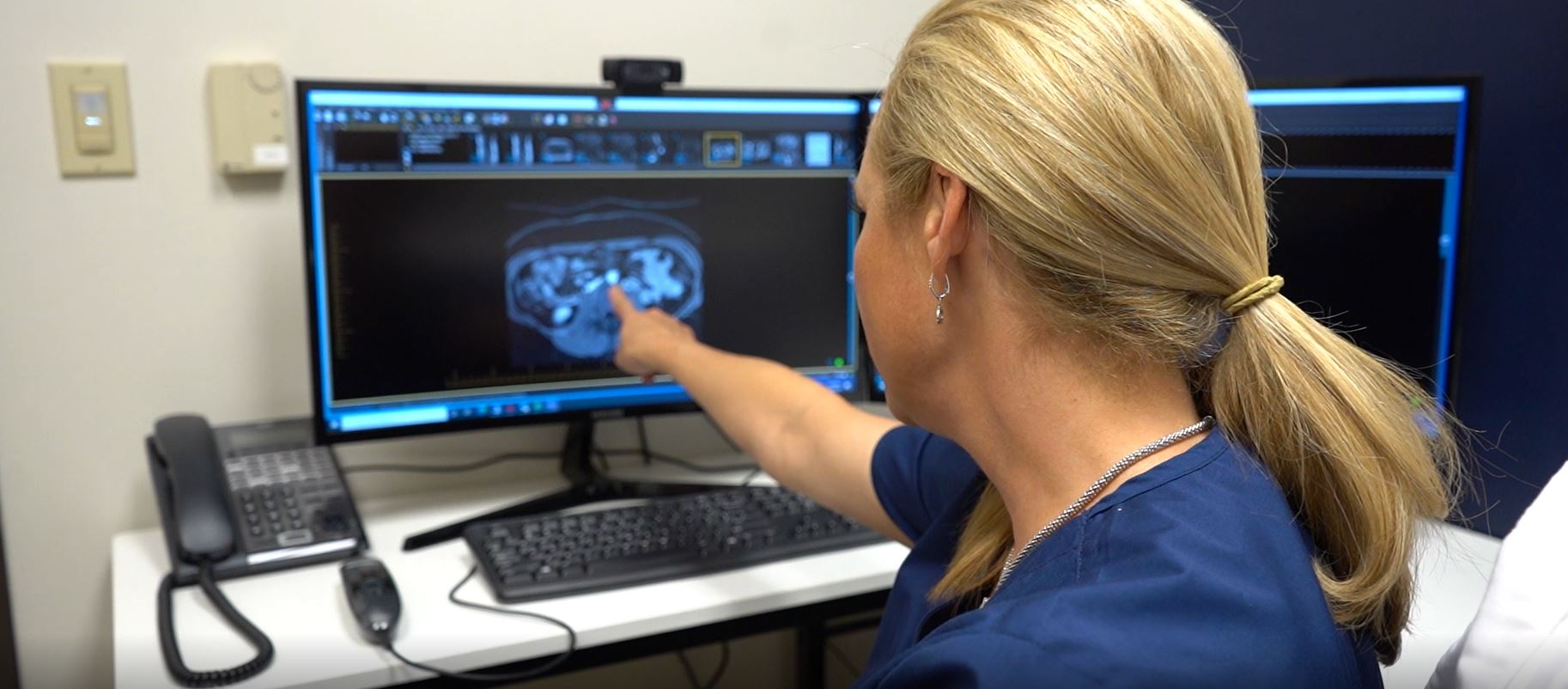 technician pointing and the x-ray results