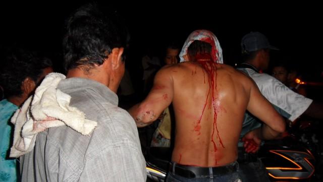 Heridos y pérdidas materiales en Villagarzón