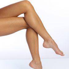 Lase fungus removal - women feet