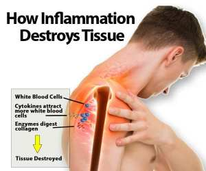 How Inflammation Destroys Tissue Illustration