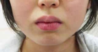 厚い唇は口呼吸のサイン