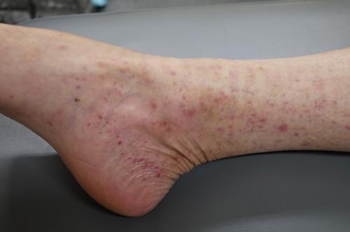 性 炎 アレルギー 血管