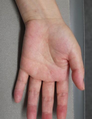 50歳代女性の掌蹠膿疱症の手のひら(治療後)