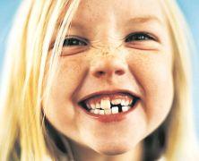 ¿Qué me dicen mis dientes?