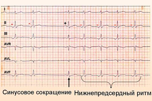 Причины и признаки предсердного ритма у пациентов всех возрастов. Диагностика и методы лечения эктопического ритма