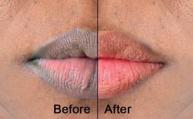 6 Ways To Make Your Lips Pink NATURALLY In 3 Weeks - Dhrishni - Medium