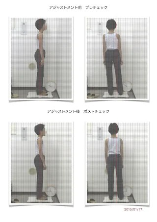 11歳女の子初回姿勢写真Pre/Post