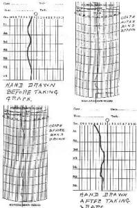 NCGH graph