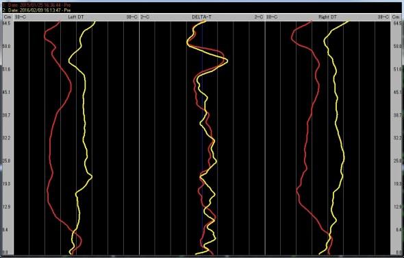 グラフパターン