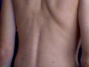 Portear con escoliosis, escoliosis y portabebes, problemas de espalda y porteo, espalda y porteo