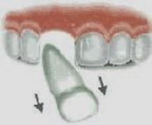 Traumatismos dentales niños