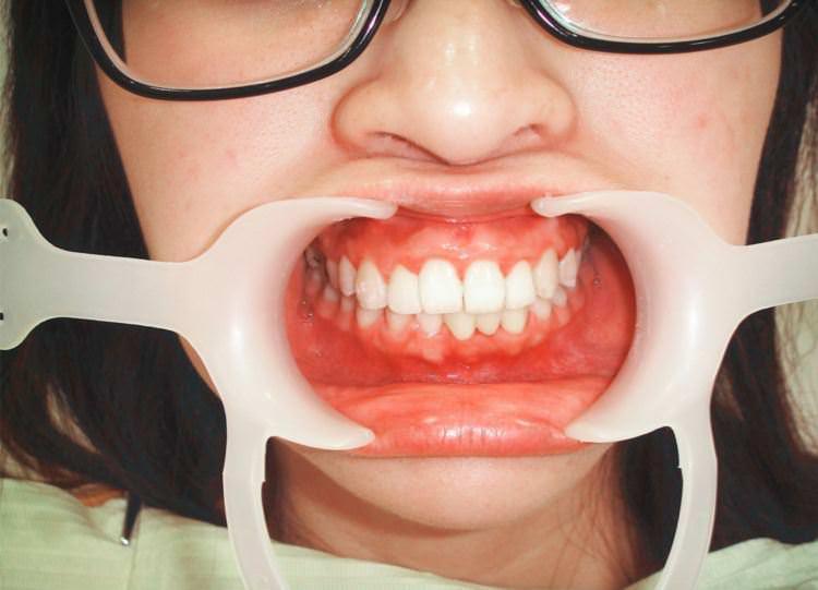新竹竹北牙醫 真美牙醫診所 舒眠植牙中心 人家拆牙套囉 ♥♥♥ 整牙的心歷路程結束 快速矯正器 牙橋 牙套 臼齒墊高 磨牙都掰掰啦 !!!!!