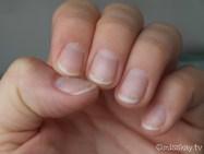 Man kann hier gut erkennen, wie sich die einzelnen Nagelplatten abgelöst haben. Meine Nägel sind nach dem Entfernen der Gelnägel echt trocken, strapaziert und spröde. Furchtbarer Anblick!