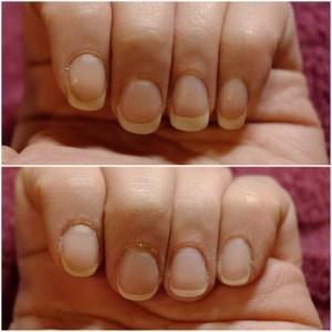 PerfectHair Nagelform vorher nachher