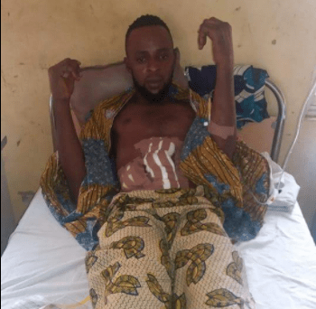 Imo doctor mistakenly cuts bike accident victim's small intestine