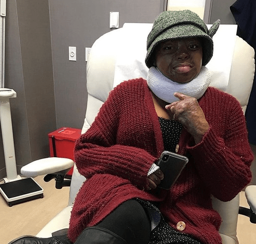 The goal is to release tension – Sosoliso plane crash survivor Kechi undergoes another surgery
