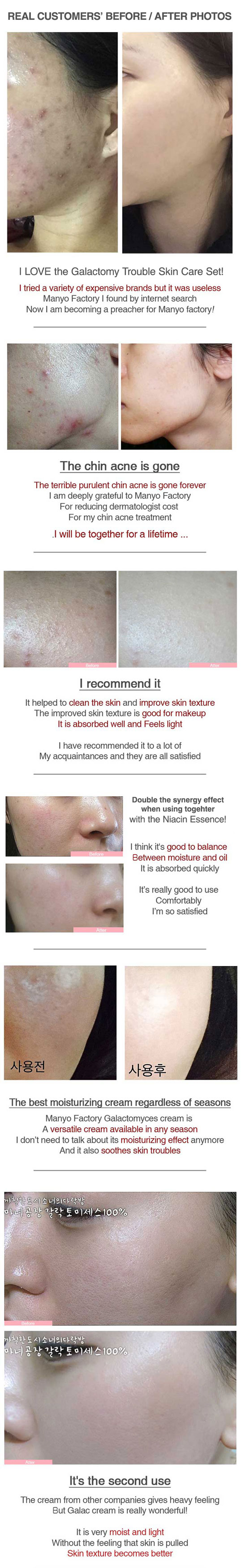manyo galactomy trouble skin care anti acne kit customers feedback and photo before after use