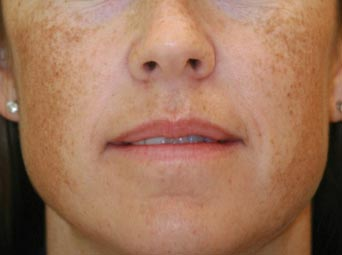 melasma treatment manyo factor