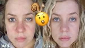 snail mucin before and after