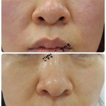 Incellderm Dermatology First Package: Booster 120ml and ...