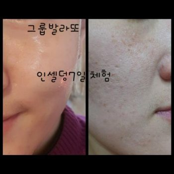 Incellderm customer review and photo 004