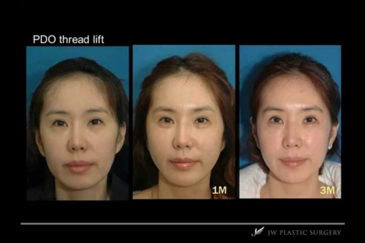 plastic surgery face lift before and after | celebrity plastic surgery