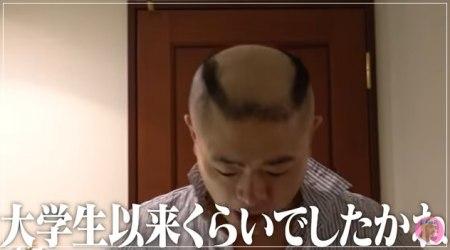 2週間髪の毛を伸ばしたあとのあばれる君の顔画像