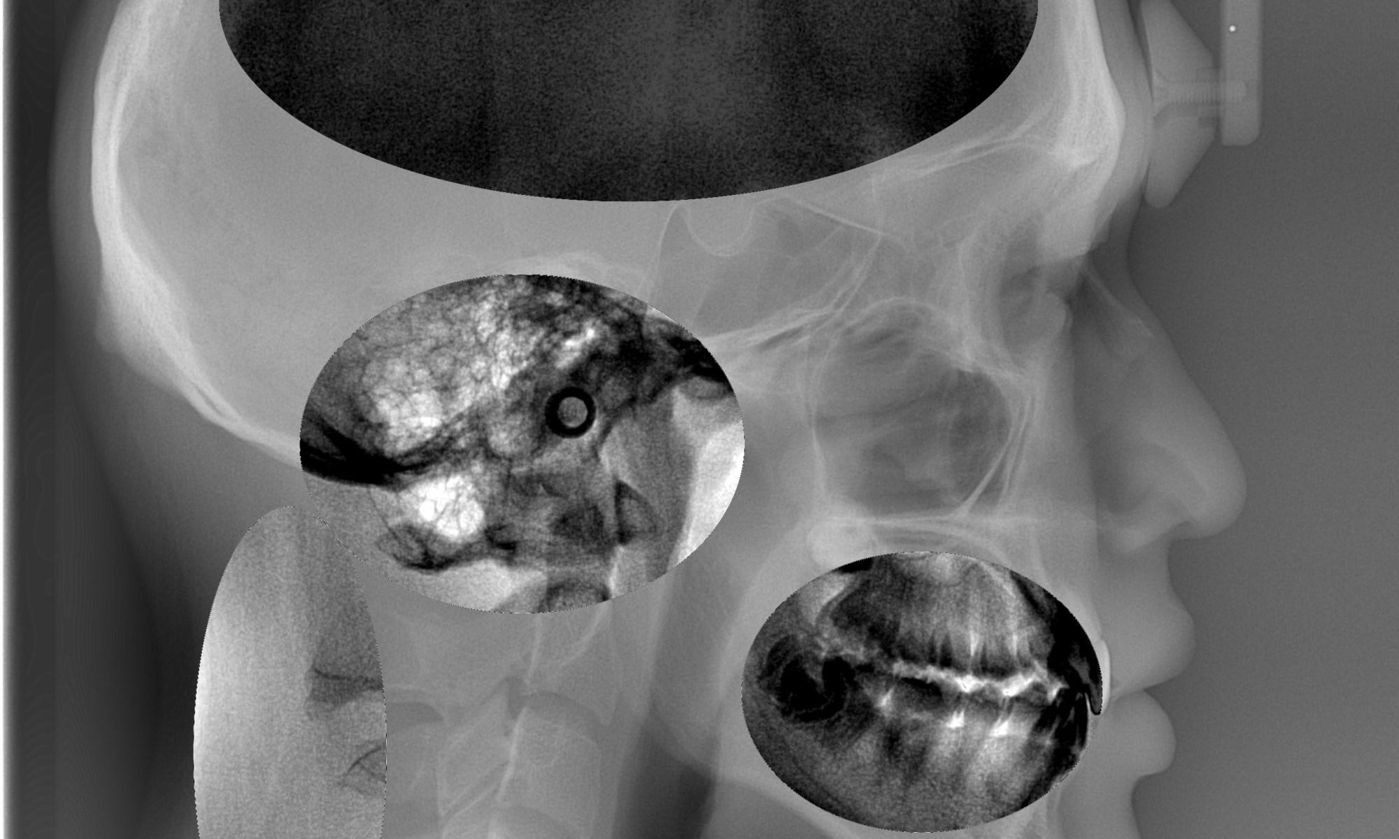 Head X-ray - Inversed X-ray Sense Scan