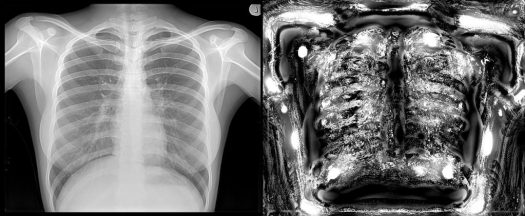 Chest X-ray Deep View Scan (right) using X-ray Sense compared with original X-ray image (left)