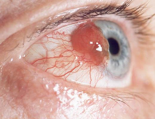Eye Melanoma