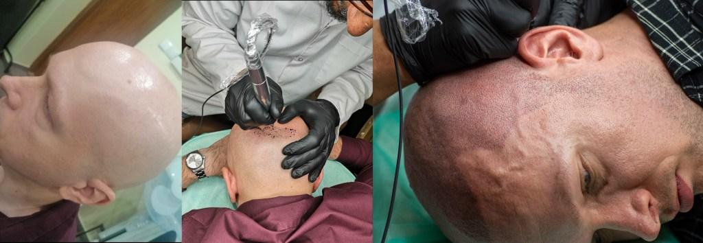 1 foto : głowa przed zabiegiem 2 foto: głowa podczas pierwszej sesji 3 foto : głowa podczas drugiej sesji