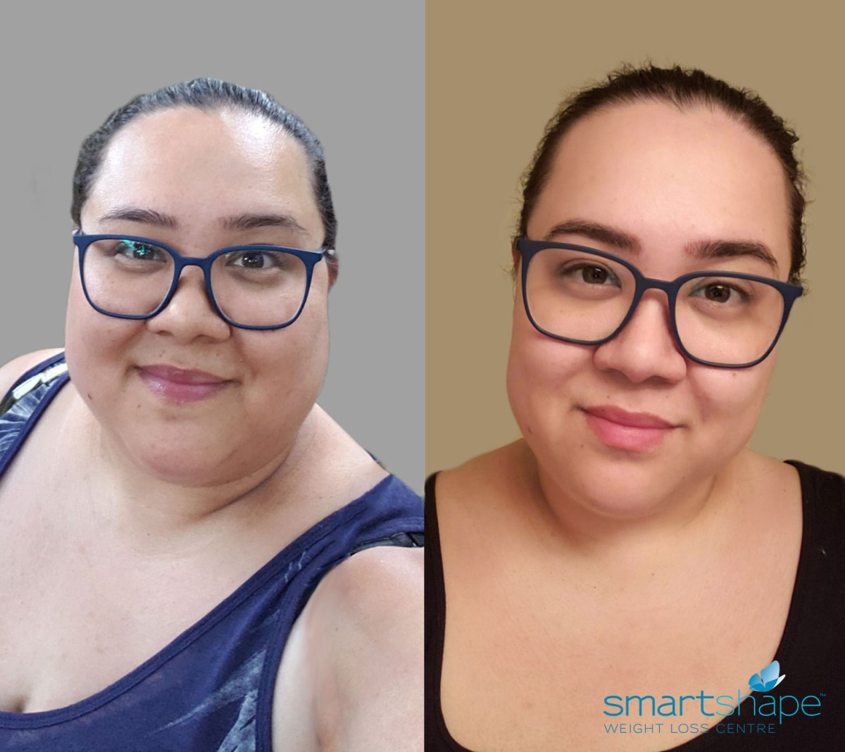 How the Mini Gastric Bypass Saved My Life - SmartShape
