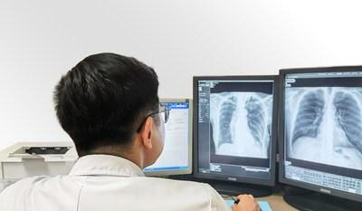 醫生透過SenseCare-Chest DR Pro 胸部X光診斷程式分析CXR影像