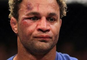 UFC on FOX: Koscheck v Hendricks