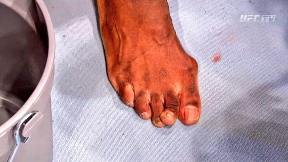 hall toe