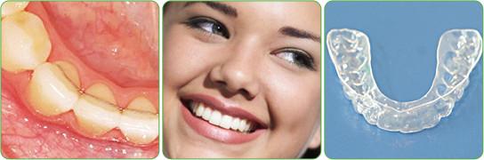 Шлифовка зубов после брекетов. Больно ли снимать с зубов брекеты, можно ли это делать раньше срока и в домашних условиях