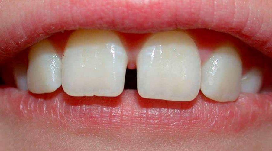 Как закрыть щель между зубами Методы комплексного лечения диастемы зубов