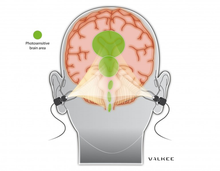 valkee-4 In-Ear Light Therapy Claims To Overcome SAD