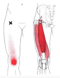 Quads Trigger Points and Pain Pattern