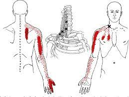 Scalenes Trigger Point chart
