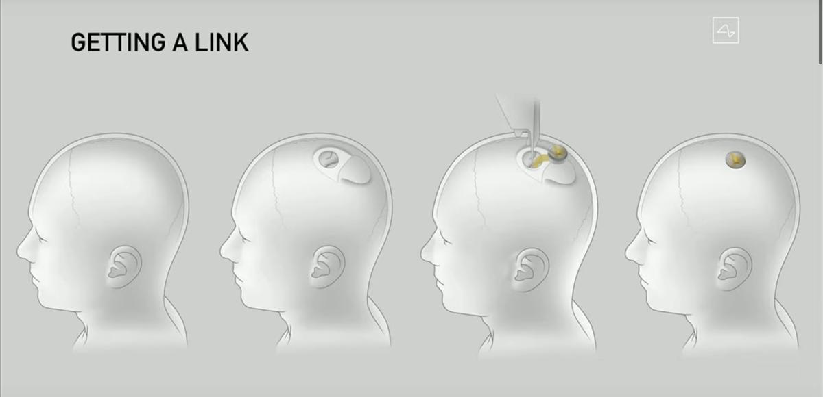 Schemat implantacji rozwiązania firmy Neuralink