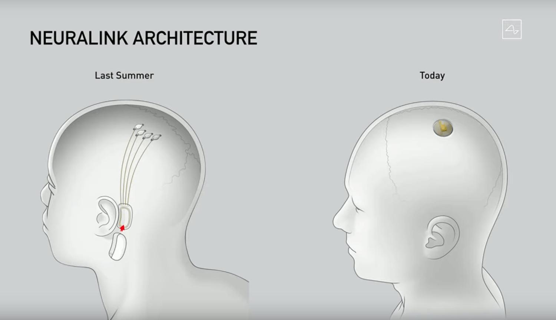 Architektura rozwiązania mózg-maszyna od Neuralink