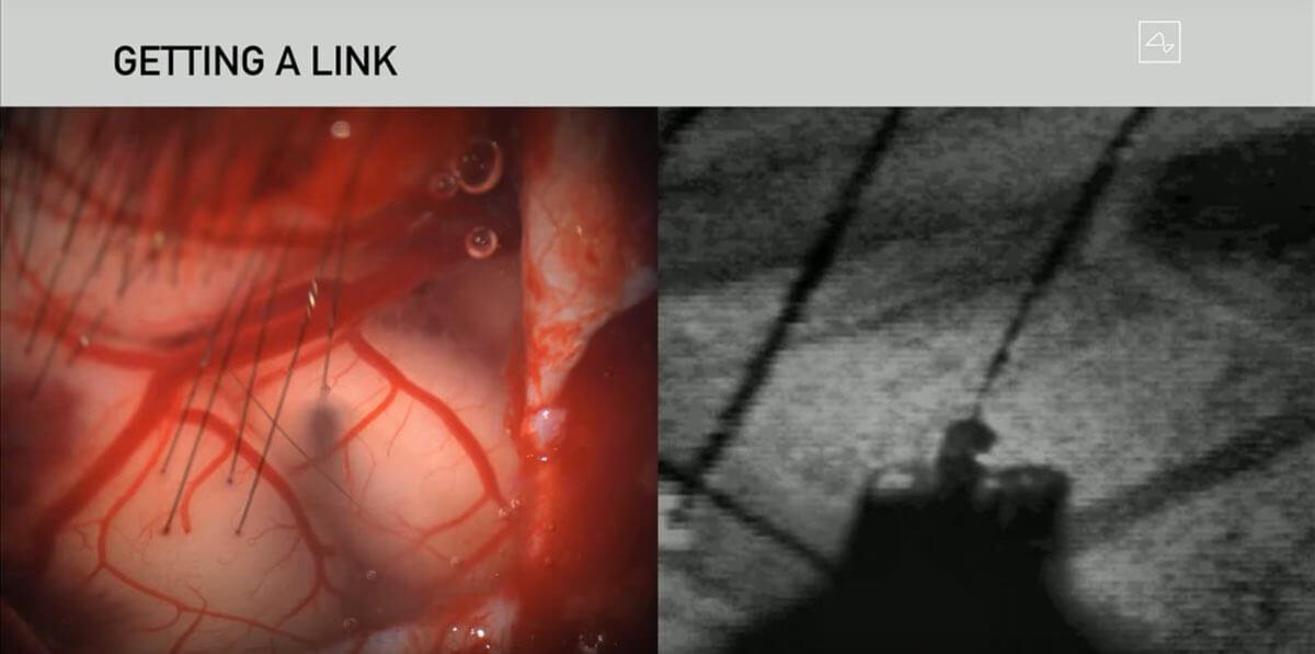 Wszczepianie implantu mózg-maszyna do mózgu