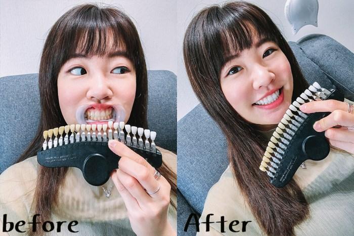台北牙齒淨白推薦|RE whitening淨白美齒:只要20分鐘黃牙齒掰掰!溫和不刺激@行天宮站