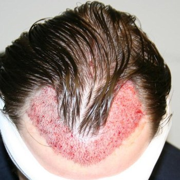 direction in hair transplant