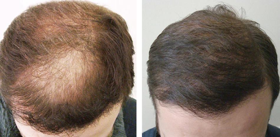 Diffuse_Hair_Loss_1582_Top